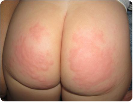 Сыпь на попе ребенка при аллергии на подгузники