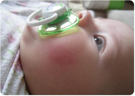 Малыш с красными щечками сосет соску