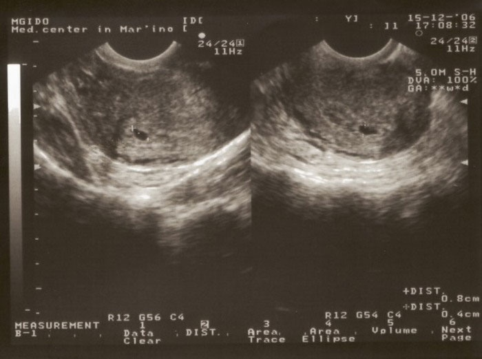 Эмбрион на 3 недели беременности