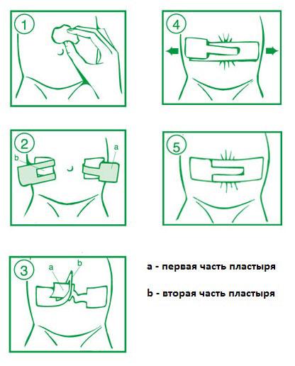 Инструкция - как одевать пластырь Порофикс