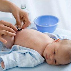 Кровоточит пупок у новорожденного: что делать?