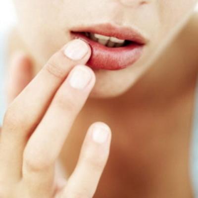 Ацикловир - недорогой эффективный препарат
