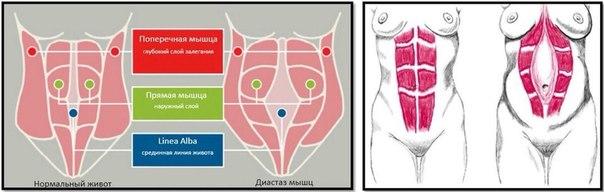 Диастаз прямых мышц живота после родов. Что это