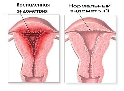 Эндометрит хронический