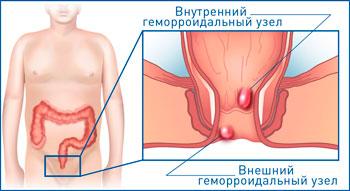Геморроидальные узлы - внутренние и внешние узлы