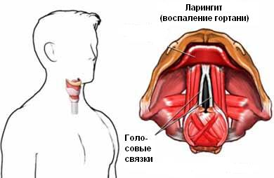 Ларингит - как выглядит больное горло