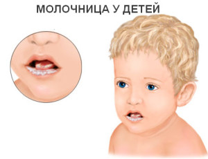 Молочница у детей