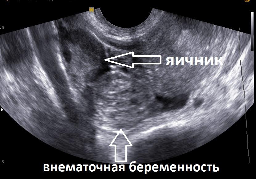 Неразвивающаяся внематочная беременность малого срока