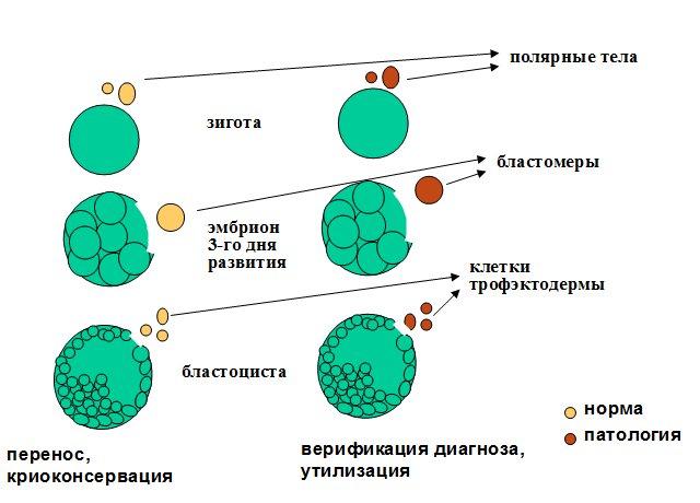 Показано развитие оплодотворенной яйцеклетки (она же зигота) в норме и при наличии патологий