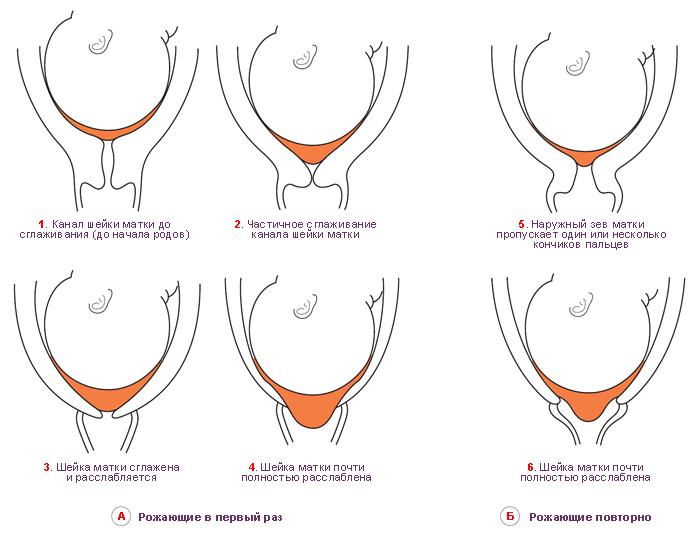 Сглаживание и расслабление шейки матки рожени́цы в начале родов