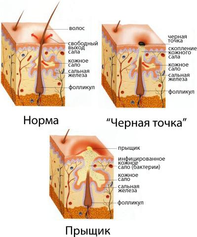Схема причин появления прыщей на голове в волосах