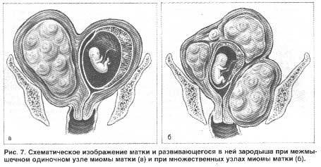Схематическое изображение матки и развивающегося в ней зародыша