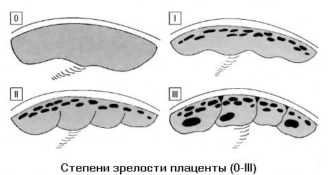 Степень зрения плаценты - стадии