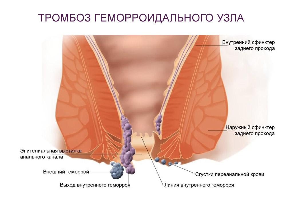 Тромбоз возникает при отеках слизистой оболочки прямой кишки