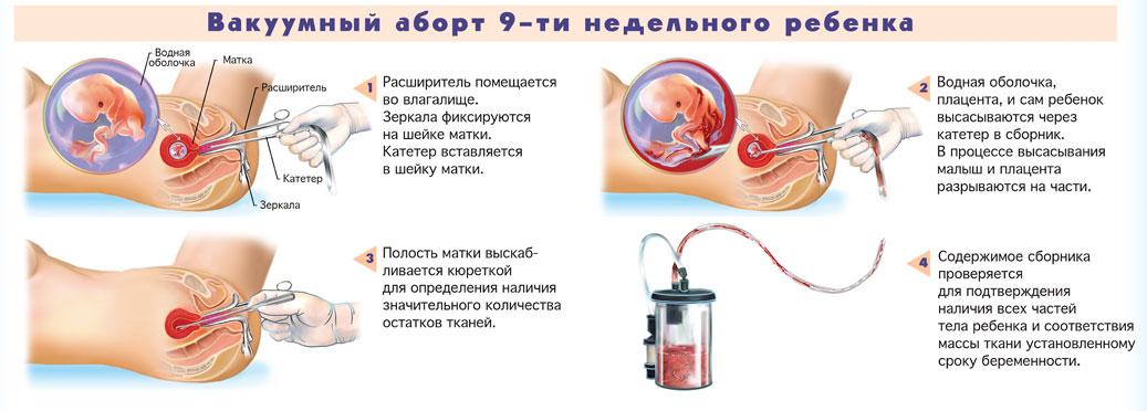 Вакуумный аборт