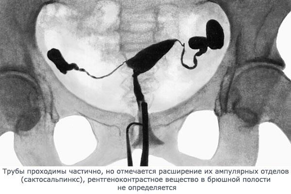Выявление непроходимости маточных труб диагностика