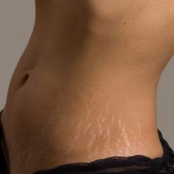 Растяжки на коже: как от них избавиться?