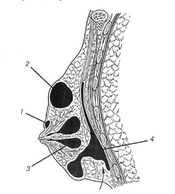 Варианты расположения абсцессов в молочной железе: 1 — субареолярный; 2 — подкожный; 3 — интрамаммарный; 4 — ретромаммарный