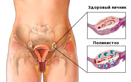 Как забеременеть при поликистозе яичников