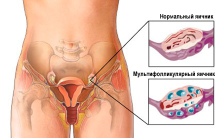 Мультифолликулярные яичники как забеременеть