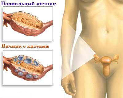 Причиной боли могут являться гинекологические заболевания