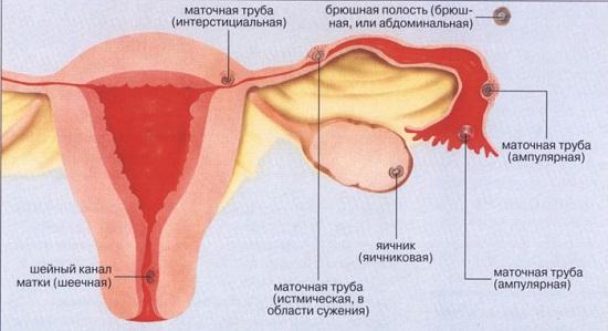 Внематочная беременность в фолопьевой трубе