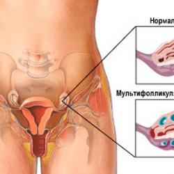Мультифолликулярные яичники: как забеременеть?