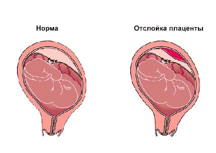 Отслойка плодного яйца на ранних сроках беременности