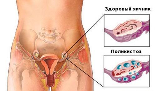 Поликистоз яичников не дает забеременеть