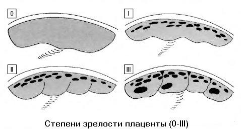 Стадии развития плаценты