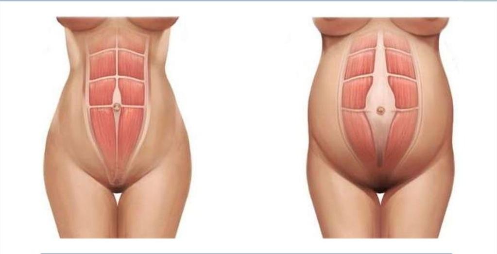 Мышцы пресса в нормальном состоянии и при диастазе