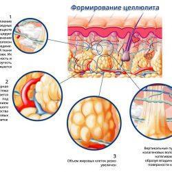 Причины возникновения целлюлита после родов и методы избавления от него