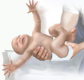 у ребёнка проявляется Рефлекс Моро