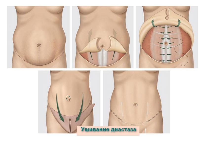 Ушивание диастаза, абдоминопластика
