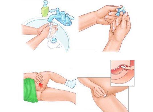 Инструкция по применению ректальных свечей