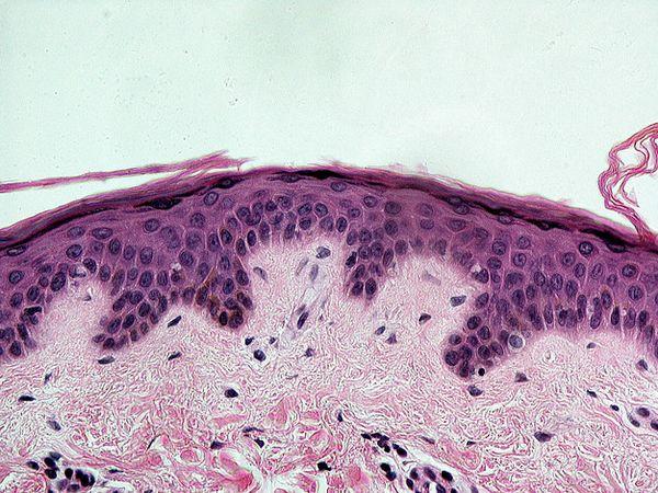 Слой тёмных клеток-меланоцитов в коже