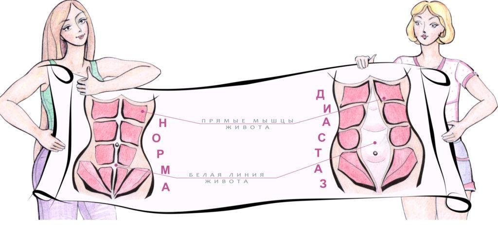 Мышцы живота при диастазе